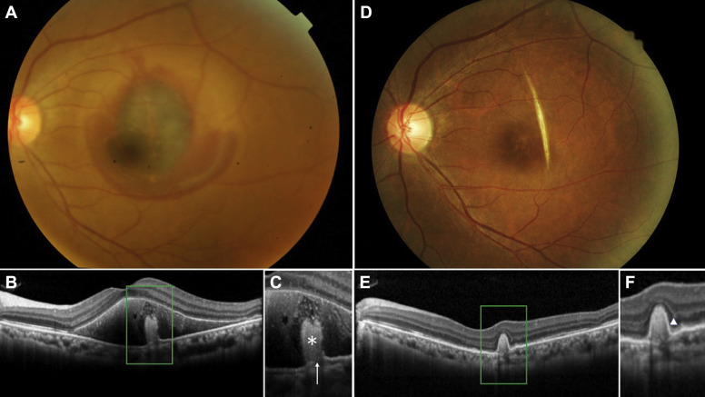 OCT In Choroidal Rupture With Submacular Hemorrhage