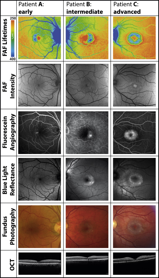 Fluorescence Lifetime Imaging Ophthalmoscopy A Novel Way To Assess Macular Telangiectasia Type 2